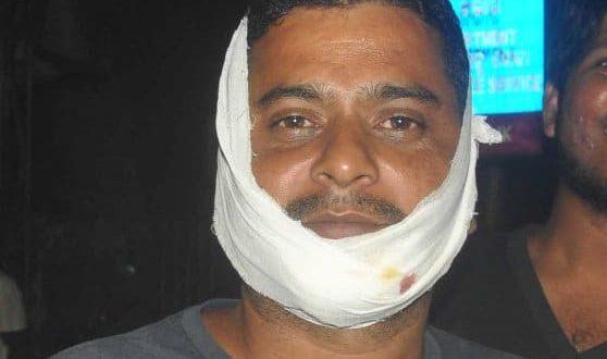 injured-in-beard-knife-attack