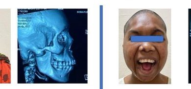 jaw joint replacement surgery